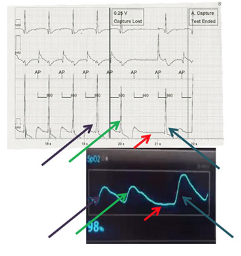 Figure 1. Simultaneous EGM (top) and pulse oximetry (bottom) displays during atrial threshold testing in AAI format. Purple and green arrows represent captured beats during threshold testing, red arrows show the missed capture beat, and the blue arrows shows the beat after resumption of normal pacing