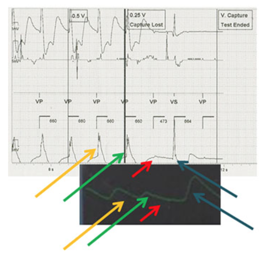 Figure 2. Simultaneous EGM (top) and pulse oximetry (bottom) displays during ventricular threshold testing in VVI format. Yellow and green arrows represent captured beats during threshold testing, red arrows show the missed capture beat, and the blue arrows shows the resumption of native beating.